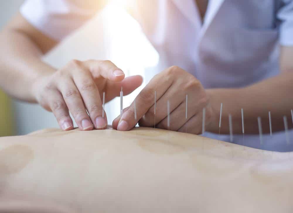 Patient undergoing acupuncture